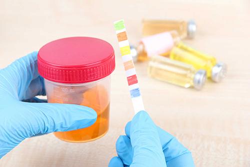 Theo dõi sức khỏe khi mang thai bằng xét nghiệm đường tiểu rất cần thiết