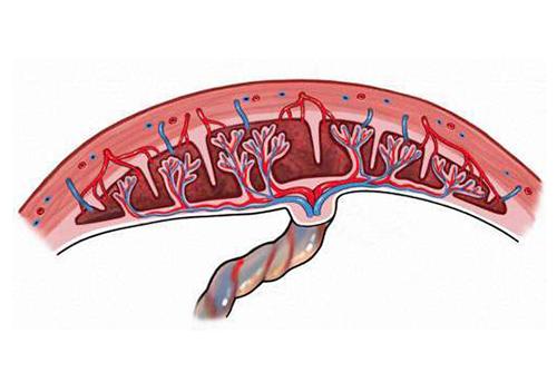 Siêu âm 2D là một xét nghiệm hữu ích trong việc tầm soát nhau cài răng lược
