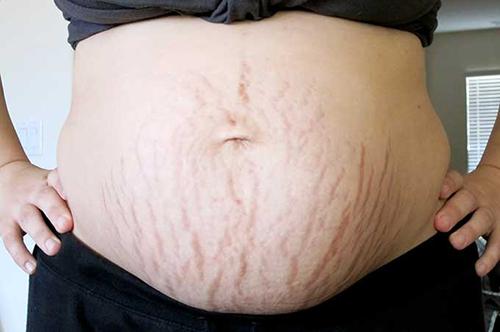 Rạn da sau sinh của chị em với biện pháp tự nhiên là gì?