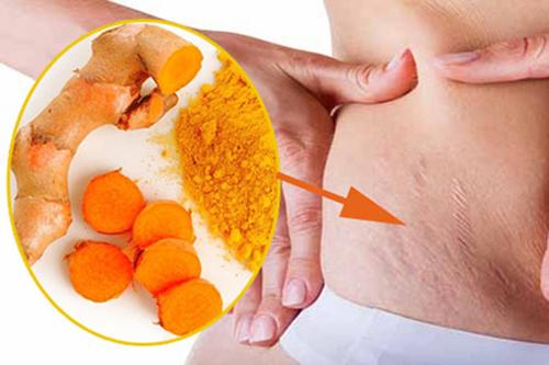Nghệ kết hợp với sữa chua rất tốt cho việc rạn da ở phụ nữ sau sinh