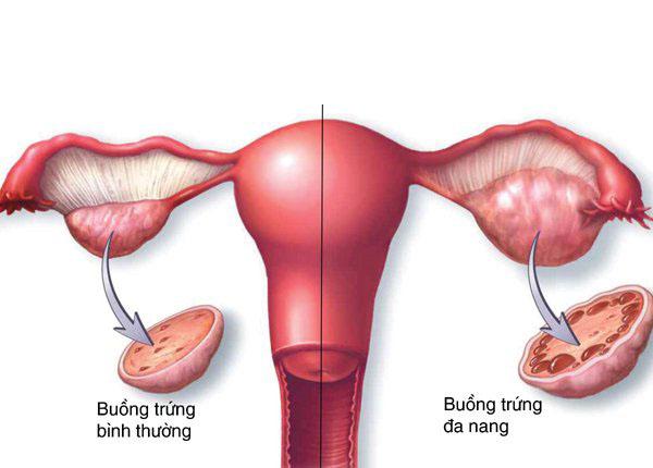Phụ nữ bị buồng trứng đa nang nguy cơ bị vô sinh, tiểu đường?