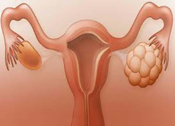 Suy buồng trứng ở nữ giới do nguyên nhân nào và có thai được không?