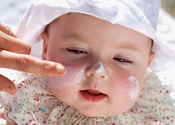 Dưỡng ẩm cho da sẽ giúp làm giảm tần suất tái phát của bệnh